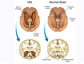 Parts of the brain effected