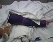 Cuando yo era joven me rompía la pierna.