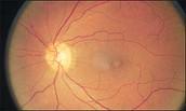 Burnt retina