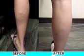 Varicose veins after treatment
