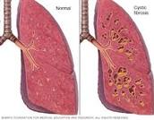 comparison of normal Vs. cystic fibrosis