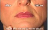 VIP Non-Surgical Face Lift