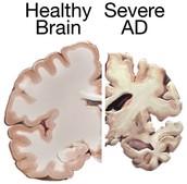 Brain Size Comparison