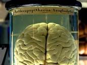 dead brains