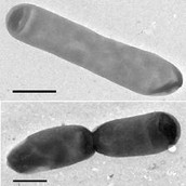 Desulfobacteraceae