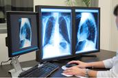 Find Best Affordable MRI Services