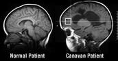 What is the Canavan Disease?