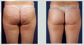 Cryotheraphy for Anti-Cellulite