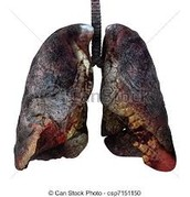 What things Affect Our Lungs