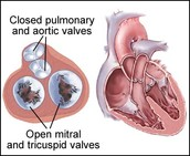 Heart Valve Disease: