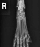 Polydactyl x-ray