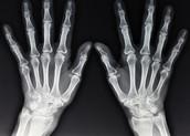 X-Rays Now