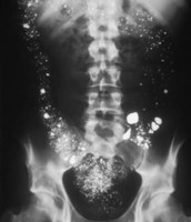 X-Ray of Mercury Poisoning Effects