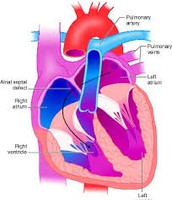 Common Cardiovascular Diseases and Disorders