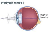 Presbyopia Treated