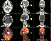 Fusion Imaging Radiology