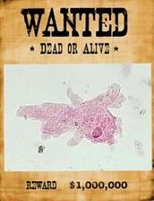 Wanted Amoeba Proteus