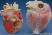 Heart in the progress of Ischemic Heart Disease
