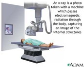 how a xray works