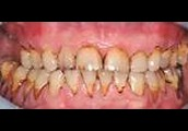 Stained Teeth or Fingers