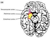 Brain with Epilepsy having deja vu