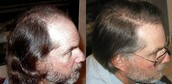 Hair Transplant in Las Vegas