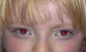 Ocular albinism.