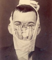 A young man with a badly injured face