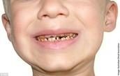 Health Concern: Teeth