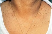 Dermatosis on the chest