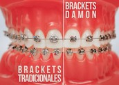 Brackets de autoligado