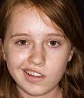 Girl with Bell's Palsy