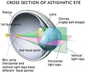 Cross Secting the Astigmatic Eye