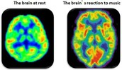 Area of the brain effected