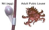 Symptoms of Pubic Lice