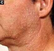 skin cysts
