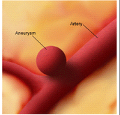 What is Aneurysm? Who is most common to get it?