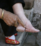 Chineses Foot Binding