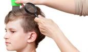 Pediculosis (Head Lice)