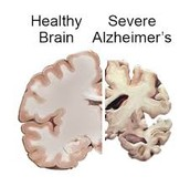 Why Alzheimers?