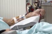 Hemodialysis Assignment
