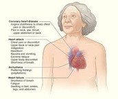 CAD Symptoms