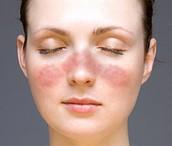 What can Autoimmune Disease Affect?