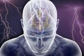 Seizure endured brain