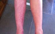 Sun spots on legs - shade Y5