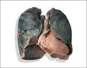 Smoking Risks..