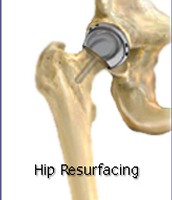 Hip resurfacing