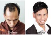 M-Shape Hair Loss