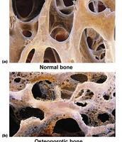 Osteoporosis!!