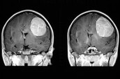 a  picture of brain cancer